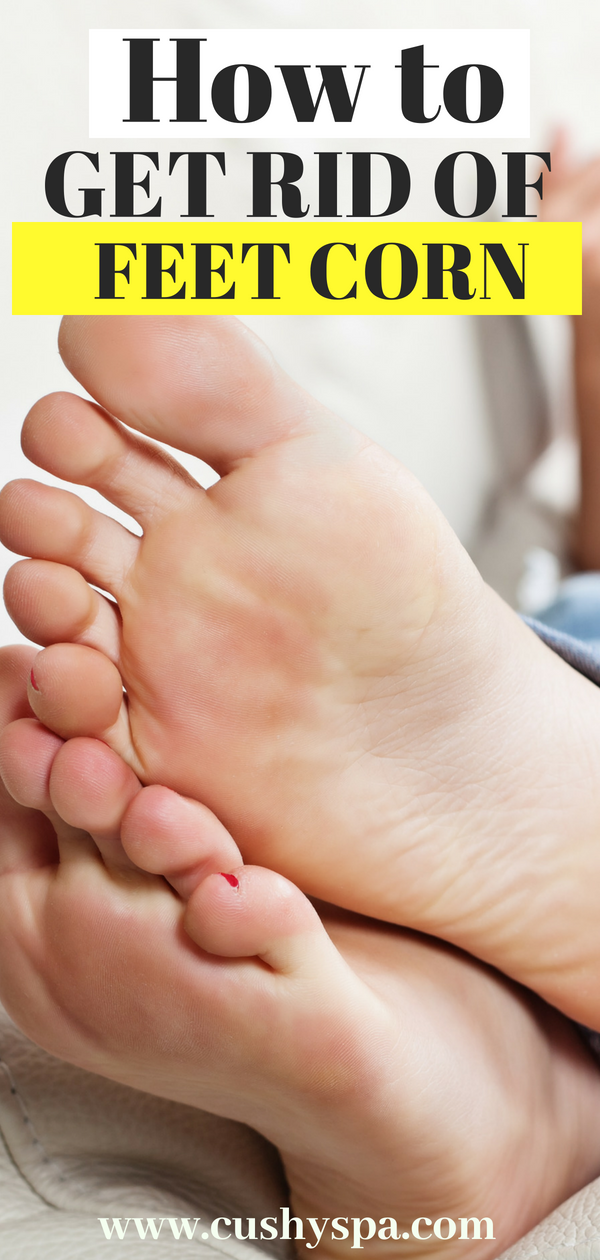 Learn everything about feet care and how to get rid of corns on your feet. They can be super annoying and you're most likely going to need these tips! #footcare #feetcare
