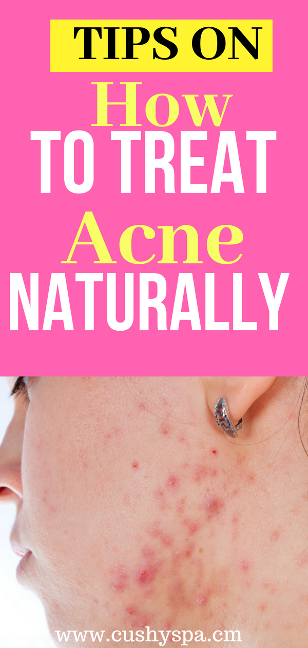 Learn more about hormonal acne treatment! Tips on how to get rid of acne! #acnetips #acnetreatment