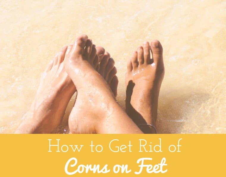 how to get rid of corn on feet