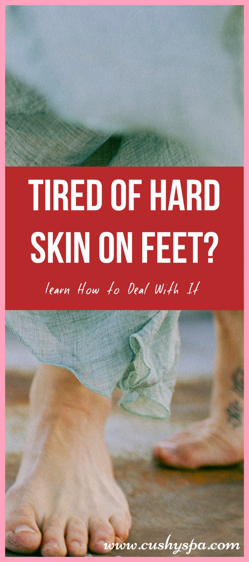 how to get rid of tough skin on feet