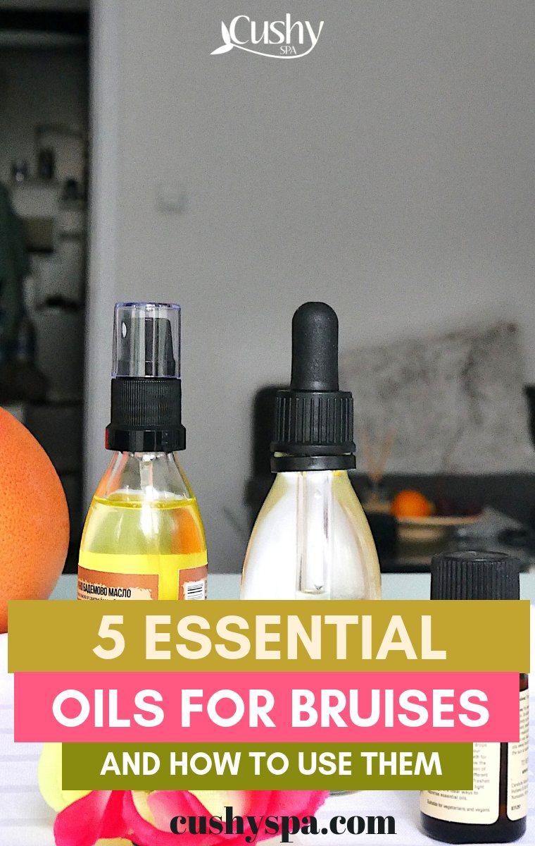 5 essential oils for bruises