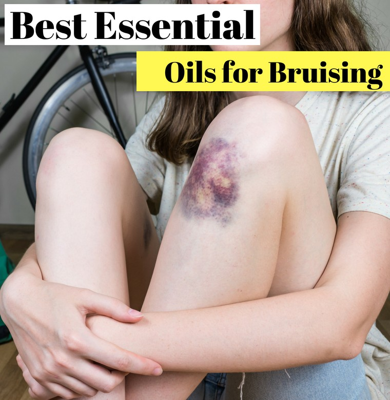 best essential oils for bruising and swelling