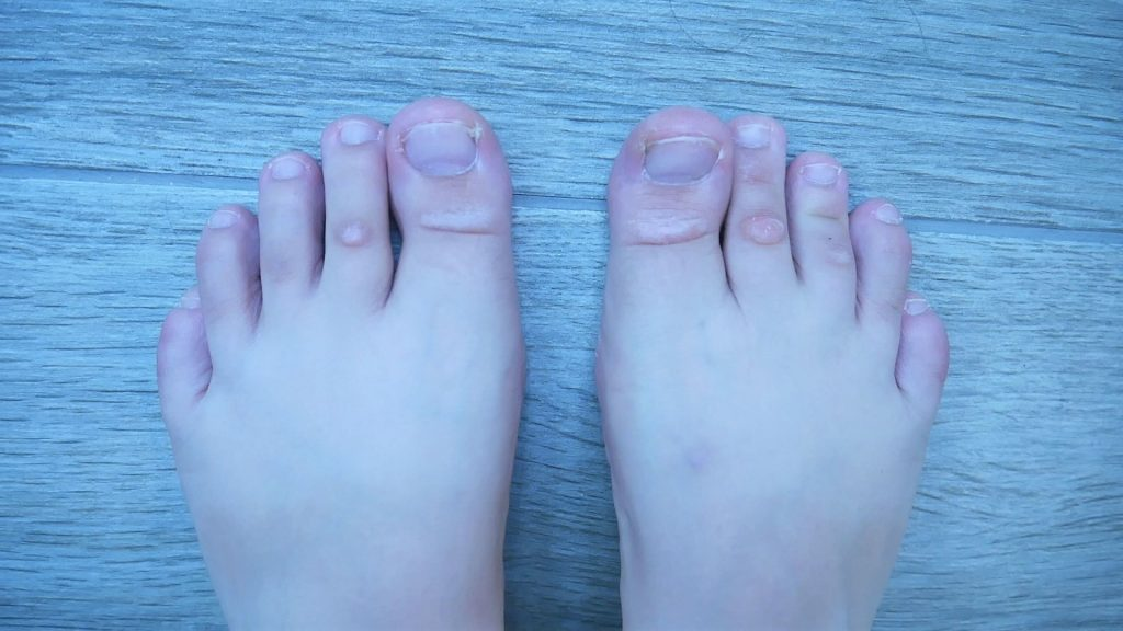 How to Get Rid of Dead Skin on Feet: Step by Step Guide - Cushy Spa