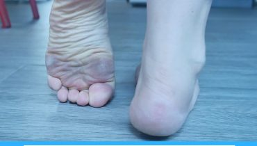 how to get rid of dead skin on feet tips