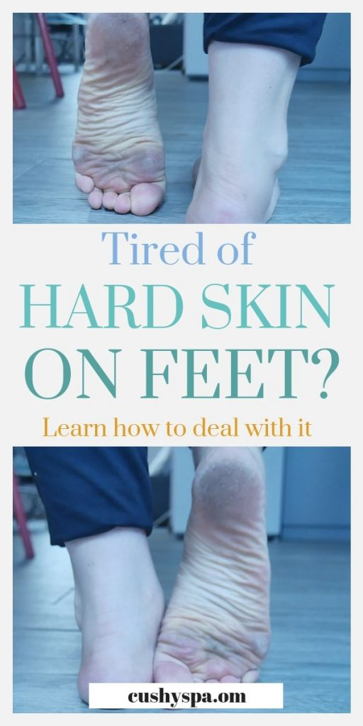 tired of hard skin on feet. learn how to deal with it. (1)
