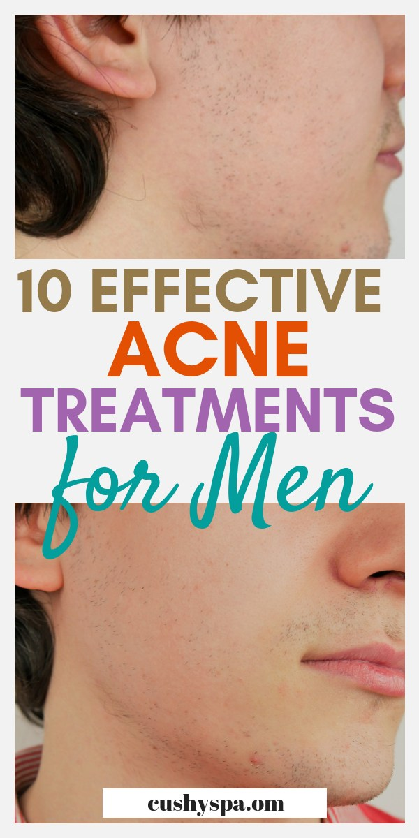 Dealing with acne breakouts? Want to get rid of acne? Here are top 10 acne treatments for men. These include natural remedies for acne as well as the best products for acne. #acne #acnetreatment